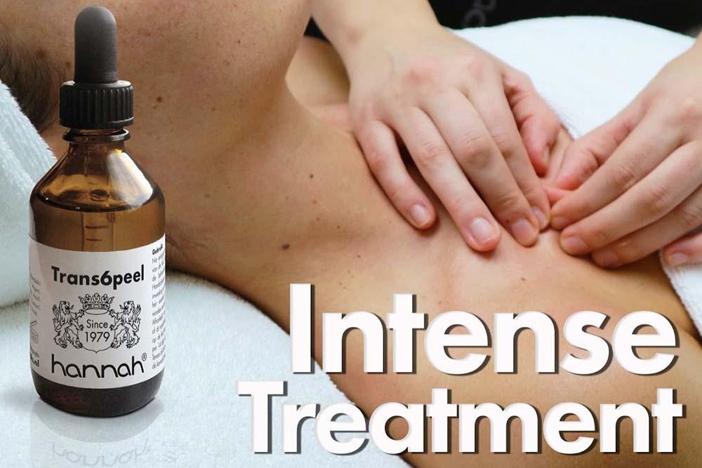 Intense Treatment Hannah